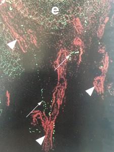 dra-anaflavia-oliveira-irritao-e-vermelhido-no-couro-cabeludo-imagem-fibras-nervosas-na-pele
