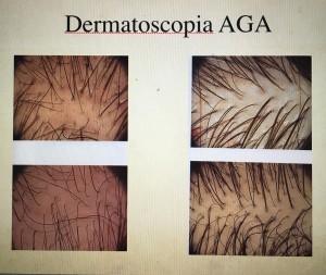 texto-2-alopecia-feminina-300x253.jpg. AGA