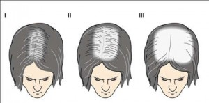 alopecia_androgenetica_gde_08